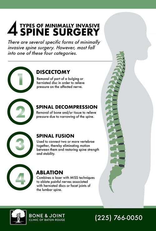 Baton Rouge Minimally Invasive Spine Surgery Spinal