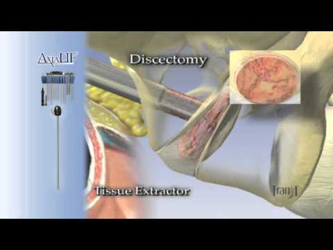 Axial LIF Procedure