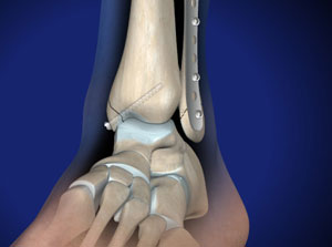 Ankle Fracture Surgery