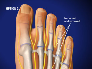 Excision of Mortons Neuromas