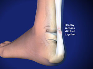 Surgery for Achilles Tendon Rupture