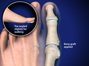 First Metatarsal-phalangeal Joint (MTP) Arthrodesis