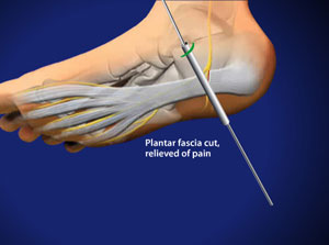 Endoscopic Plantar Fascia Release