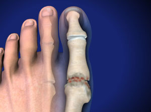 Hallux Rigidus (Stiff Big Toe)