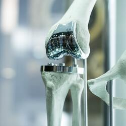 Knee replacement parts