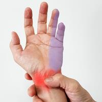 cubital tunnel syndrome-1