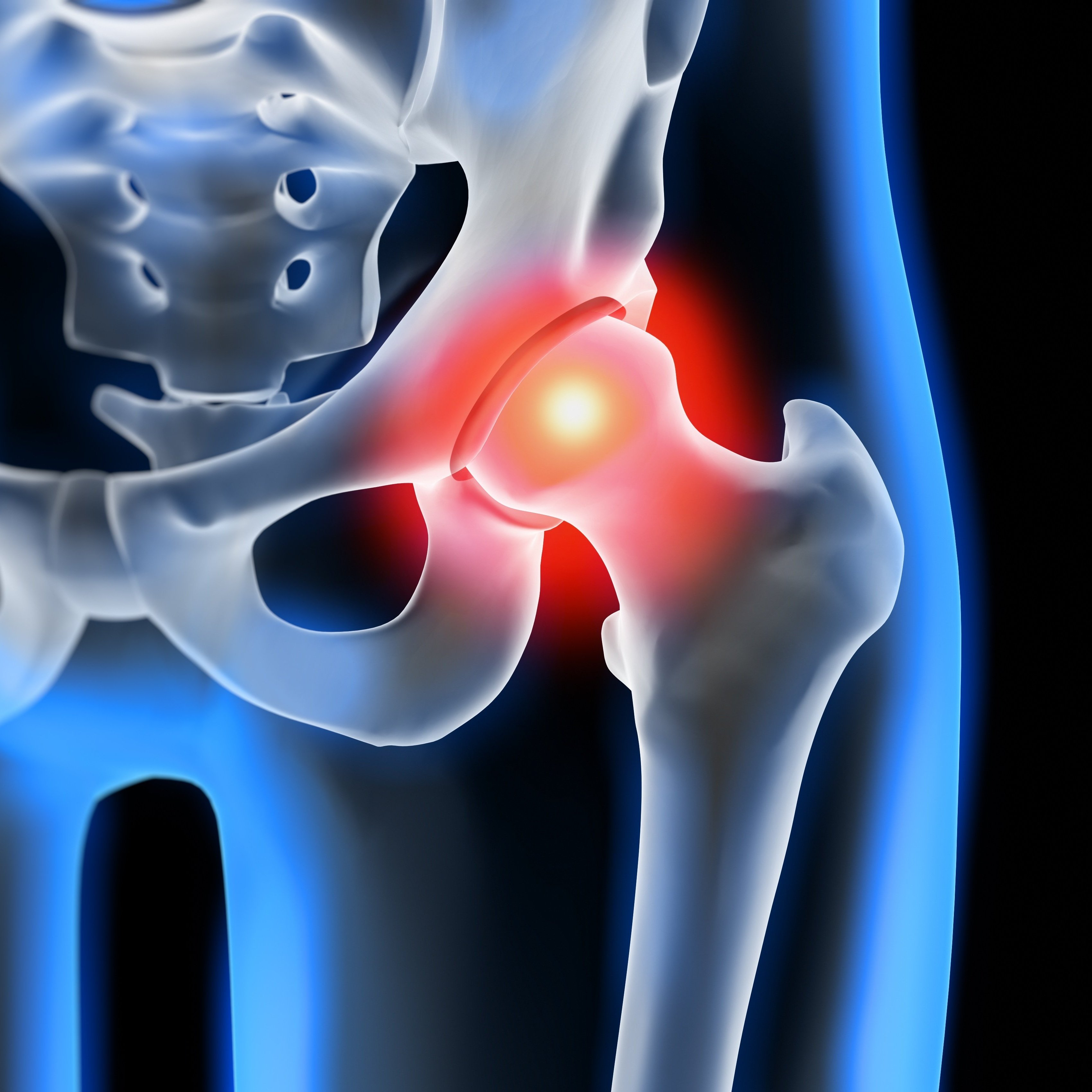 traditional hip replacement