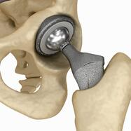 SuperPath hip replacement