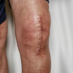 knee replacement scar-1