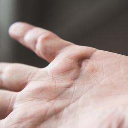 palm of hand-1
