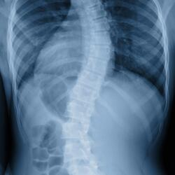 scoliosis x-ray-429134-edited.jpeg