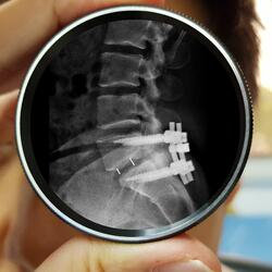 spinal stenosis surgery-1