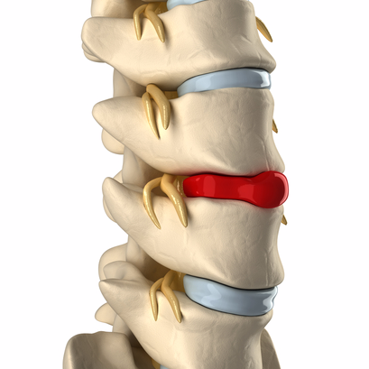 treating herniated discs
