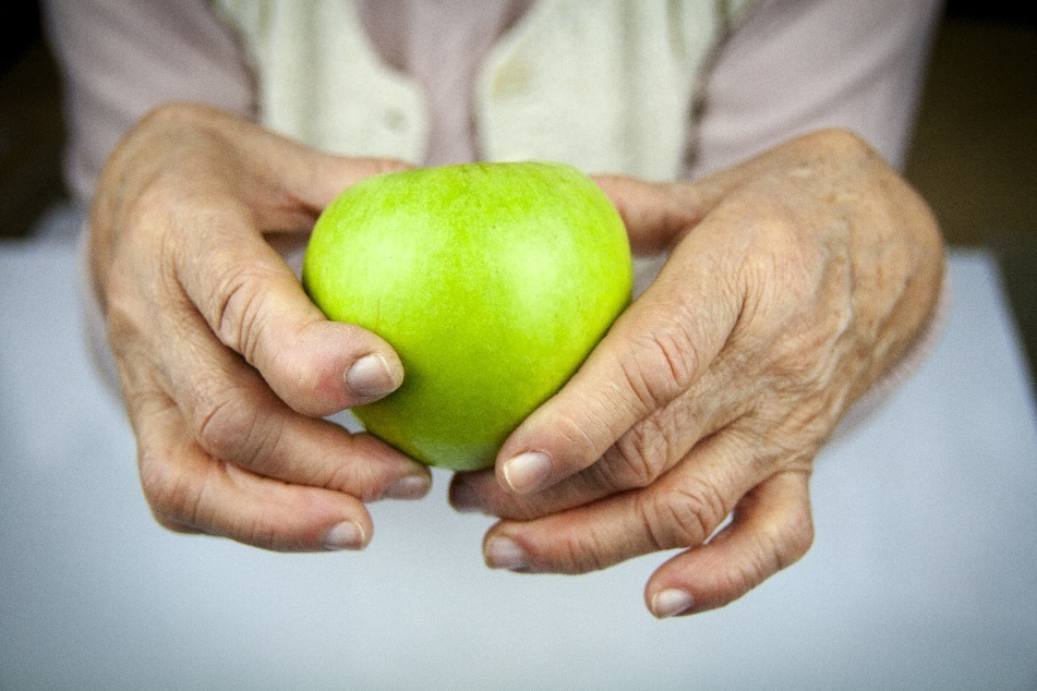 How Severe will Your Arthritis Become: Determining Factors