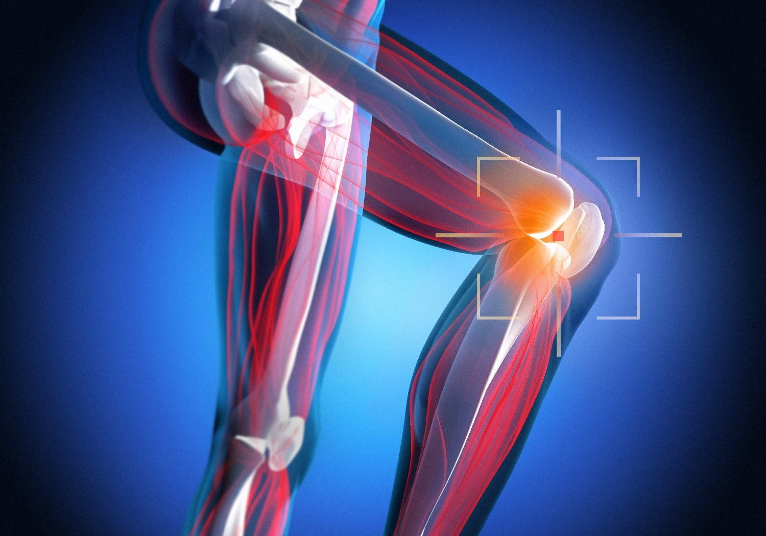 Treating Arthritis in Baton Rouge: What are my Options?
