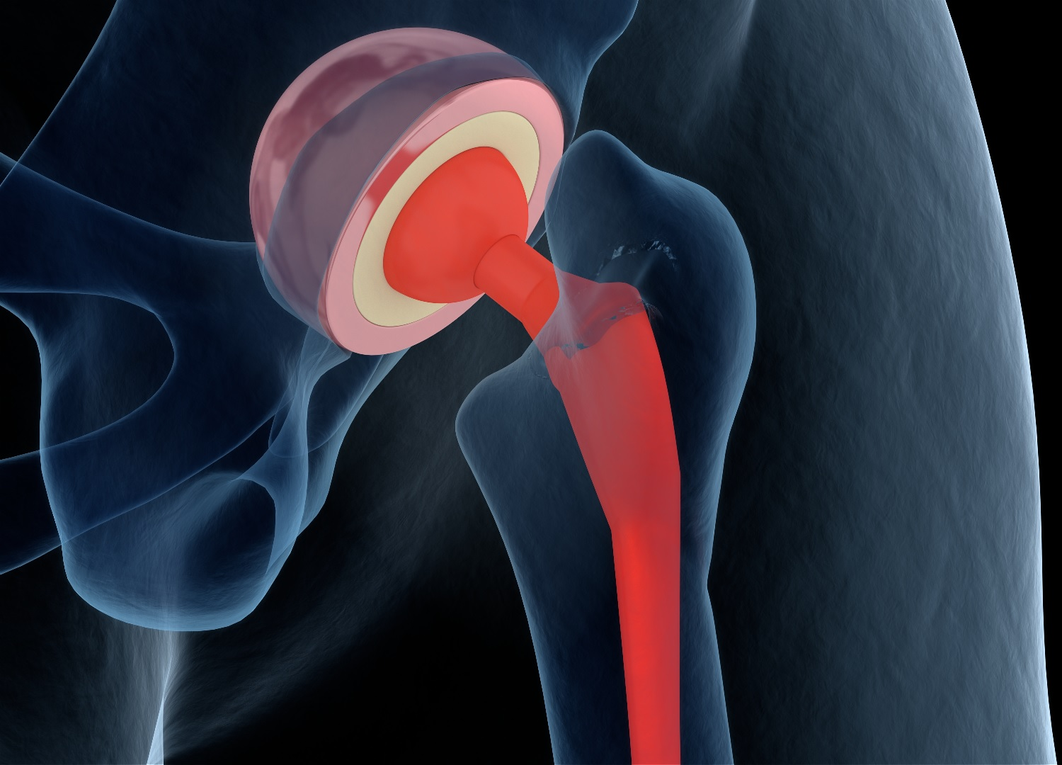 SuperPath Hip Replacement: The Major Benefits