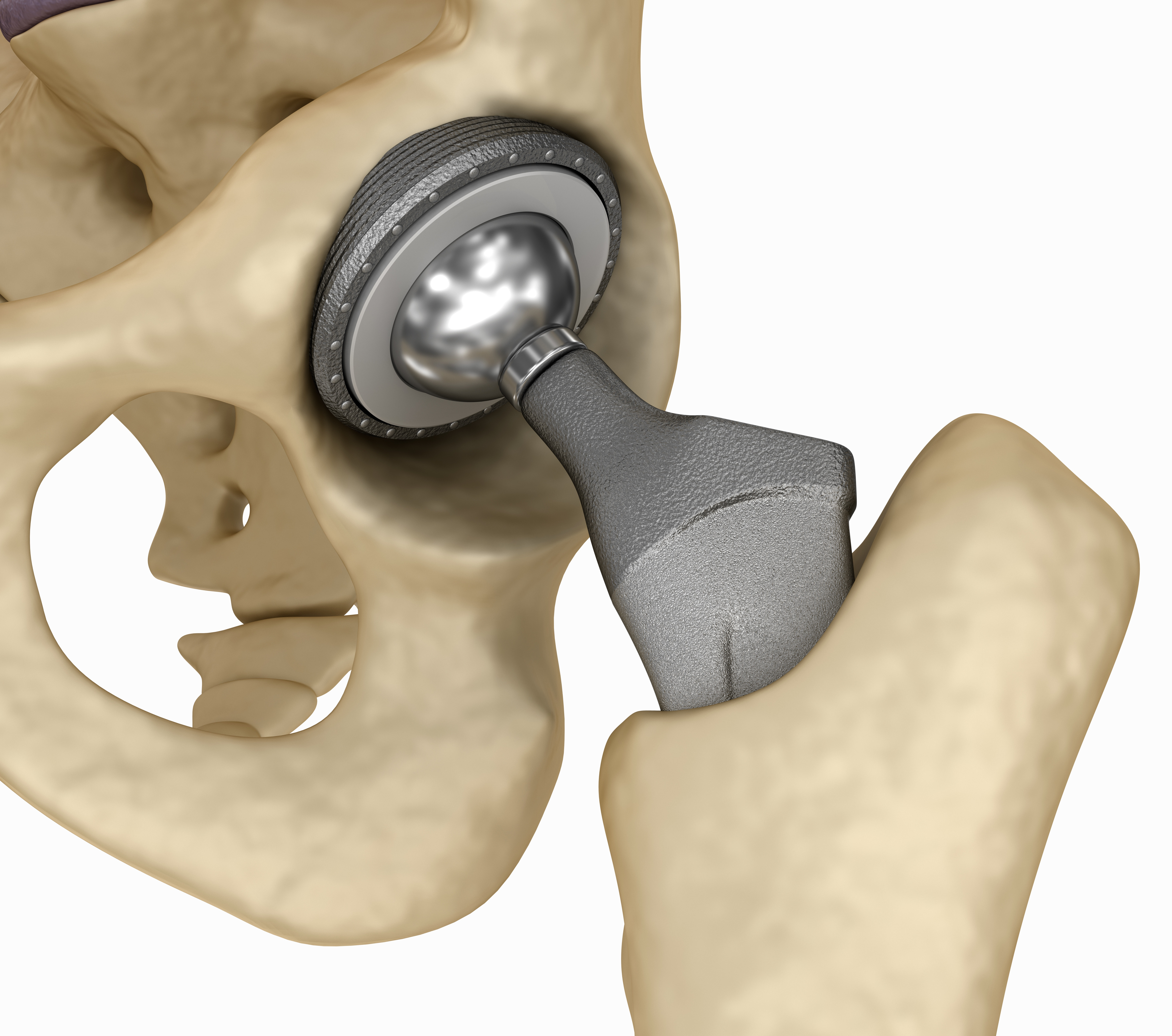 SuperPath Hip Replacement Baton Rouge | SuperPath Surgeons