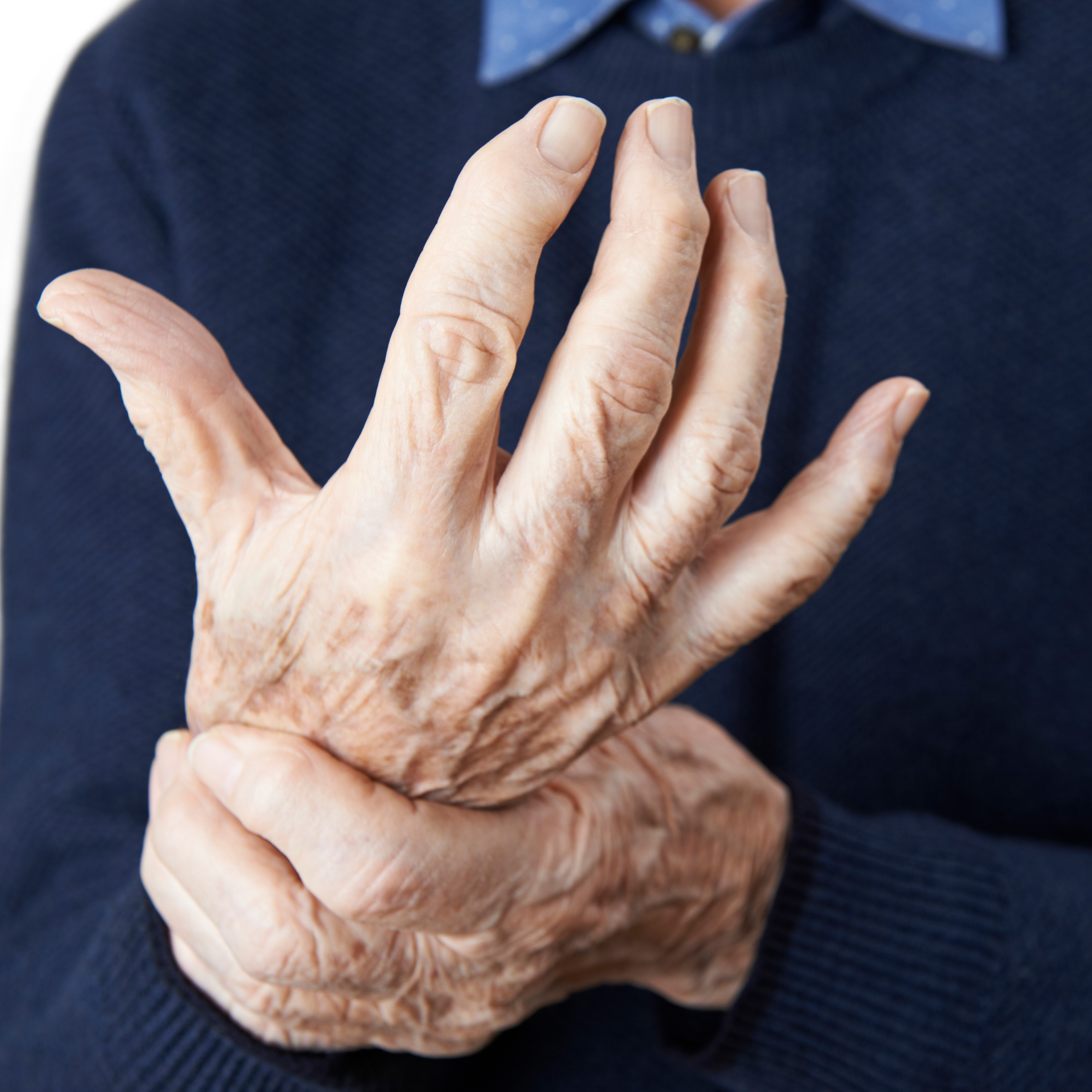 how arthritis affects the joints-1