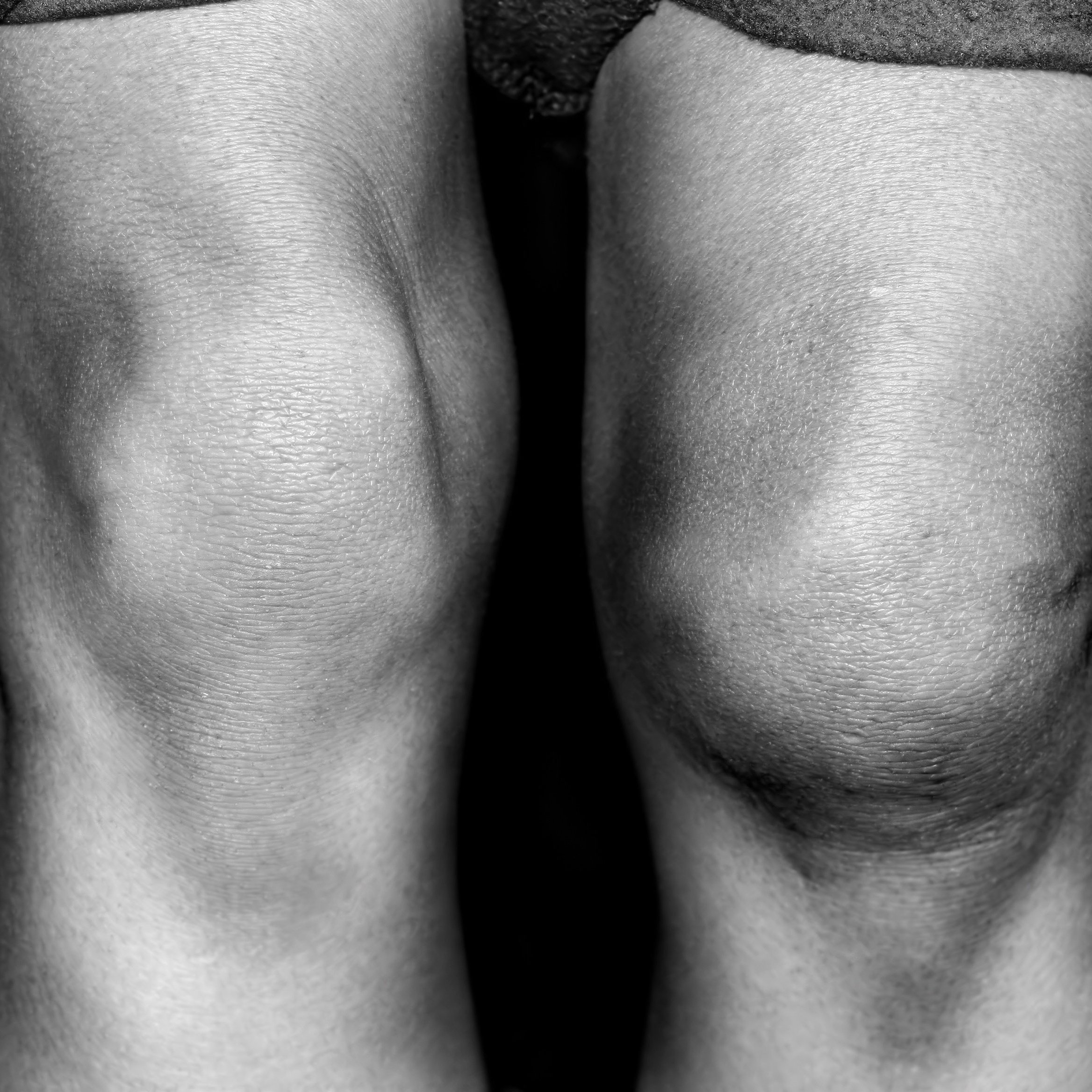 knees-857441-edited